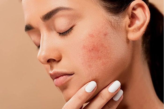 port du masque et acné